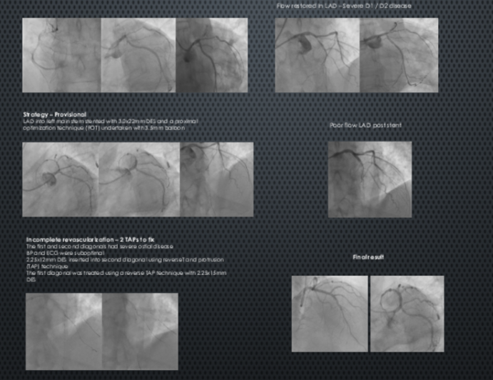 Cardiogenic Shock in a 58 Year Old Male with Critical 3 Vessel Disease