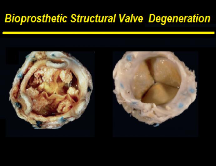 Bioprosthetic structural valve degeneration
