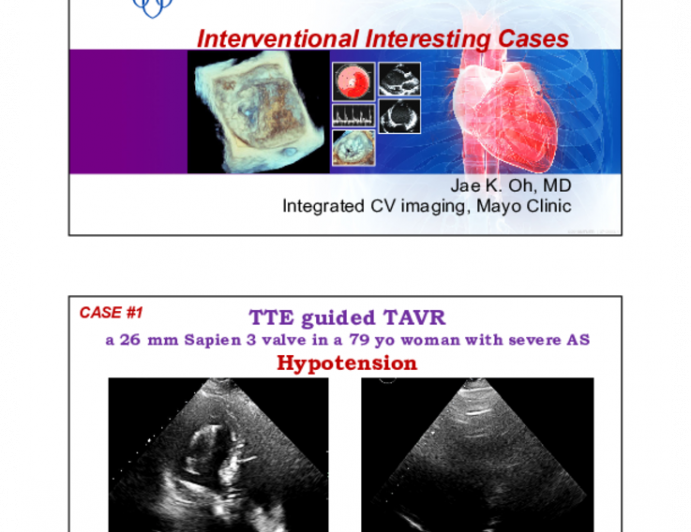 Interventional Interesting Cases