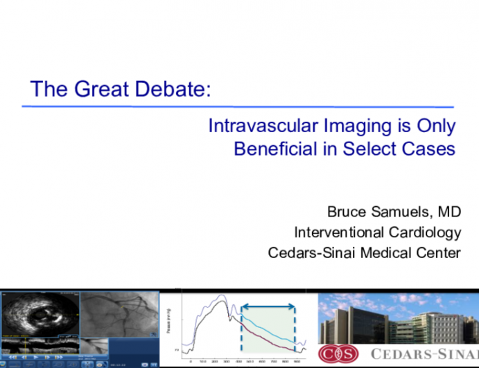 The Great Debate: Intravascular Imaging is Only Beneficial in Select Cases