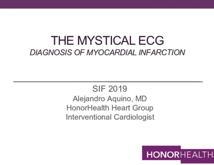 The Mystical ECg Diagnosis of myocardial infarction