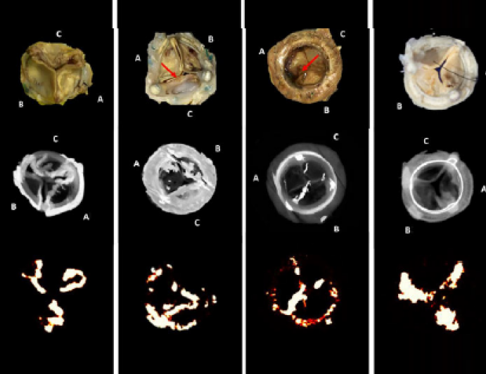 Can We Standardize the Definition of Structural Prosthetic Valve Dysfunction?