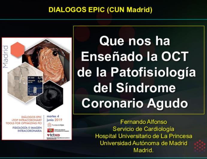 Que nos ha Enseñado la OCT  de la Patofisiología del Síndrome Coronario Agudo