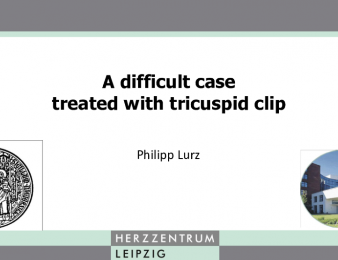 Case 4: A Difficult Case Treated With Tricuspid Clip