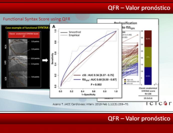 Evaluación funcional  no invasiva y sin adenosina – Quantitative Flow Ratio (QFR)