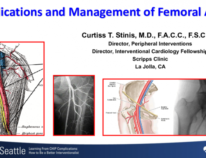 Complications and Management of Femoral Access