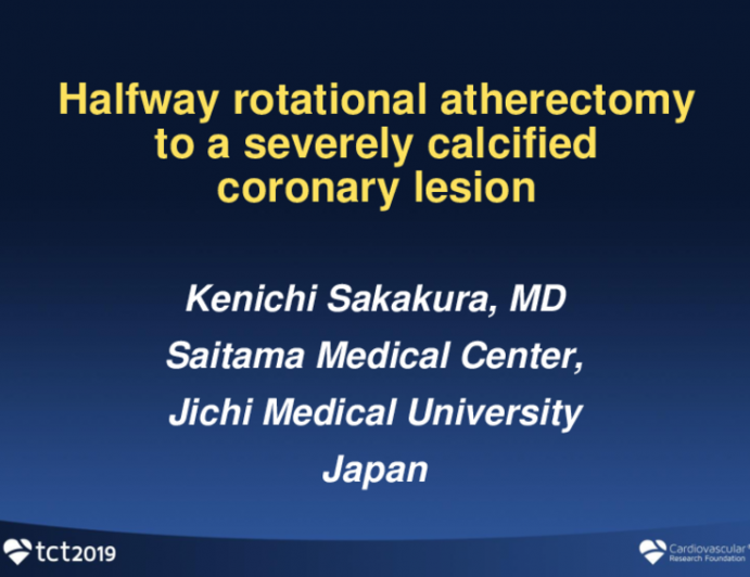 Halfway Rotational Atherectomy in Severely Calcified Coronary Lesions