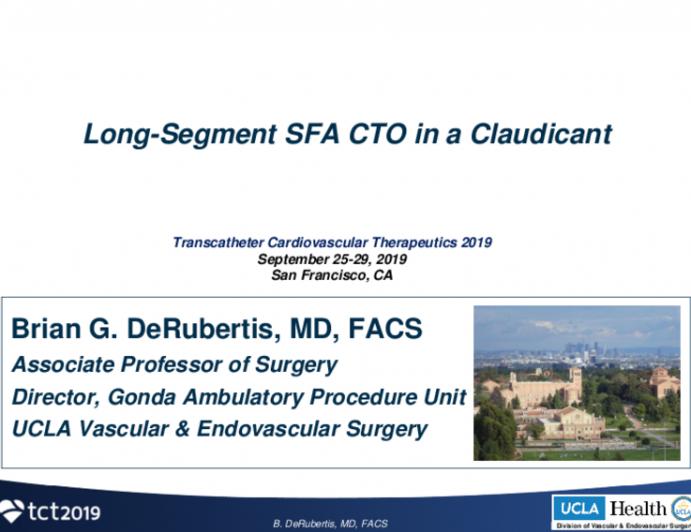 Long Segment SFA CTO in a Claudicant