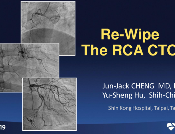 Taiwan Presents: Re-Wipe the RCA CTO