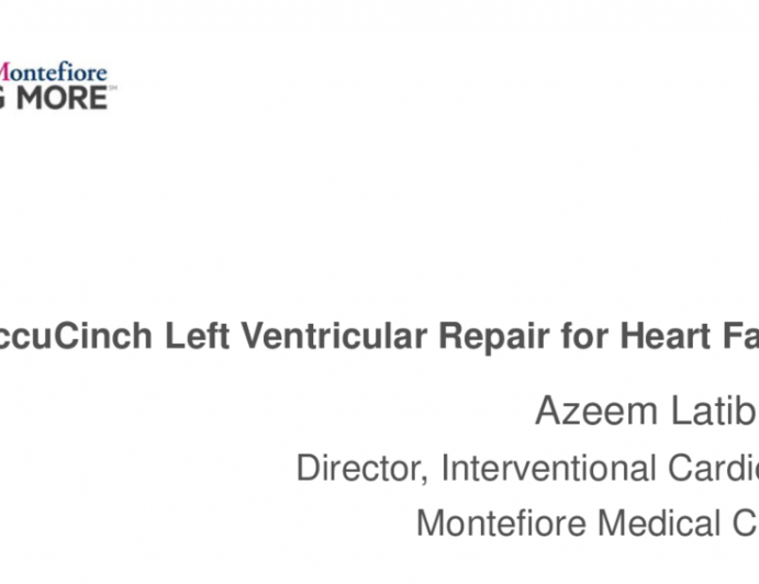 AccuCinch Left Ventricular Repair for Heart Failure