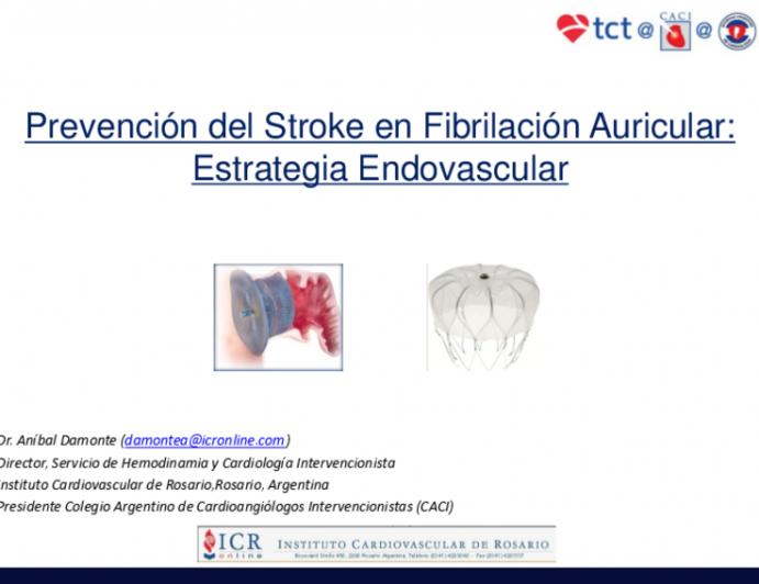 Prevención del Stroke en Fibrilación Auricular: Estrategia Endovascular