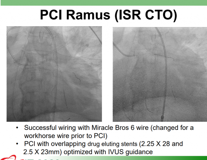Left Main PCI with Co-Morbidities A New Zero Contrast Approach