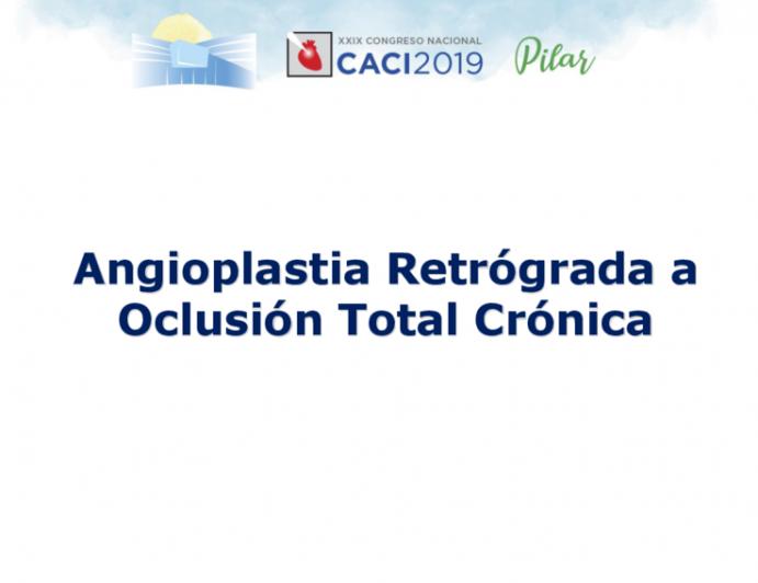 Angioplastia Retrógrada a Oclusión Total Crónica