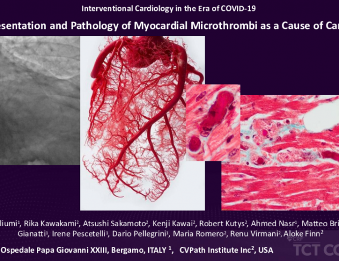 COVID-19: Clinical Presentation and Pathology of Myocardial MIcrothrombi as a Cause of Cardiac Injury