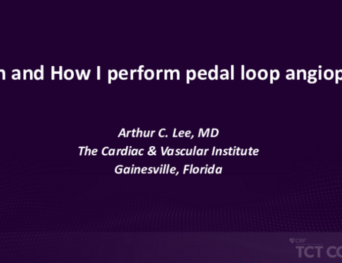 When and How I Perform Pedal Loop Angioplasty