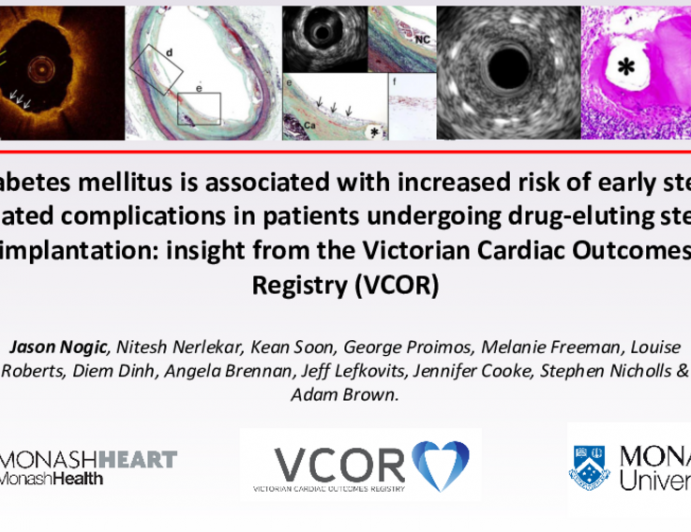 TCT 386: Diabetes Mellitus is Associated With Increased Risk of Early Stent Related Complications in Patients Undergoing Drug-Eluting Stent Implantation: Insight From the Victorian Cardiac Outcomes Registry (VCOR)