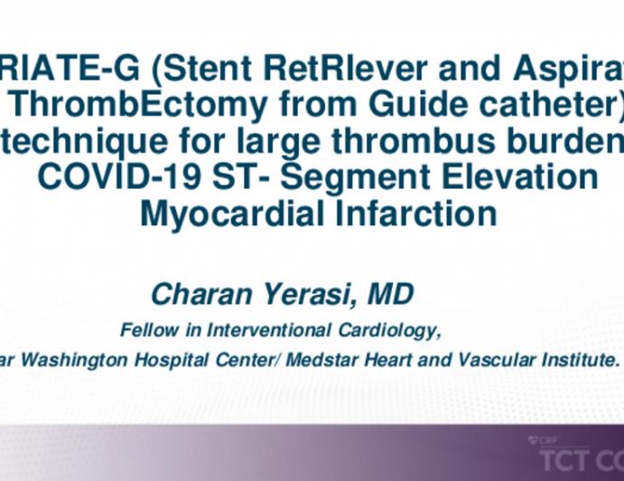 """TCT 552: """"STRIATE-G (Stent RetRIever and Aspiration ThrombEctomy From Guide Catheter)"""" Technique for Large Thrombus Burden/ COVID-19 ST- Segment Elevation Myocardial Infarction"""