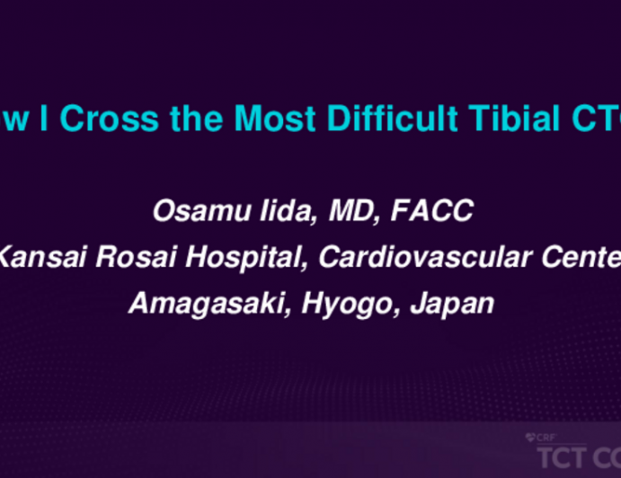 How I Cross the Most Difficult Tibial CTOs