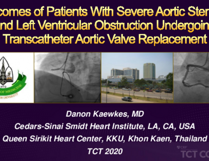 TCT 126: Outcomes of Patients With Severe Aortic Stenosis and Left Ventricular Obstruction Undergoing Transcatheter Aortic Valve Replacement