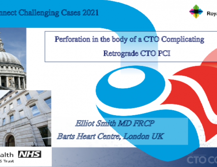 Perforation in the body of a CTO Complicating Retrograde CTO PCI