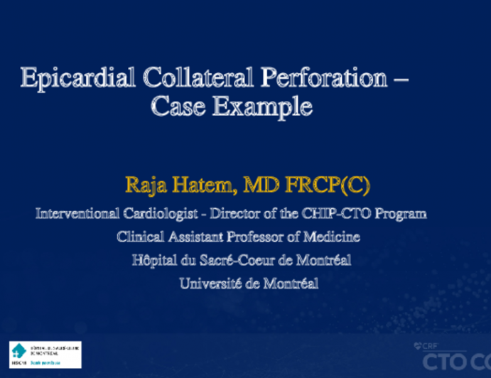Epicardial Collateral Perforation – Case Example