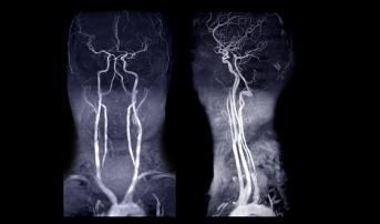 Stroke Thrombectomy for Basilar Artery Occlusions Gains Support: Registry