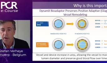 DynamX Bioadaptor Provides Promising Preliminary Results for De Novo Coronary Lesions