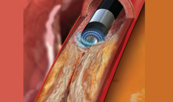 Large UK Study Explores Use of Excimer Laser Coronary Atherectomy