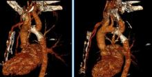 Percutaneous Reconstruction of Interrupted Aortic Arch