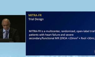 The Treatment of Mitral Regurgitation in 2019 and Beyond