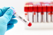 Anemia Common in ACS Patients, Linked with Higher Mortality