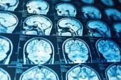 NAVIGATE ESUS: Rivaroxaban Fails to Prevent More Recurrent Cryptogenic Strokes Than Aspirin