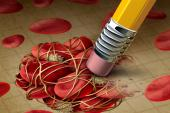 DOACs Safe, Effective in A-fib Patients With Preexisting LAA Thrombus