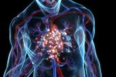 Methotrexate, an Anti-inflammatory, Fails to Lower Risk of Cardiovascular Events: CIRT