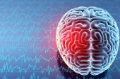 Ultrasound-Enhanced Thrombolysis No Help in Stroke: CLOTBUST-ER