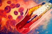Three Years On, Absorb BVS Still Doesn't Improve Myocardial Blood Flow