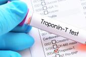 High-Sensitivity Troponin Performs Well Against Traditional Tools for 30-Day MACE Prediction