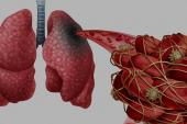 German COVID-19 Autopsy Data Show Thromboembolism, 'Heavy' Lungs
