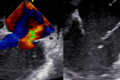 MitraClip Viable in MI Patients With Acute MR, Including Patients in Shock: IREMMI