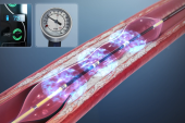 DISRUPT CAD III: Lithotripsy Boosts Stent Expansion in Highly Calcified Lesions
