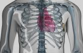 Subcutaneous ICD Holds Up Well Against Transvenous Devices
