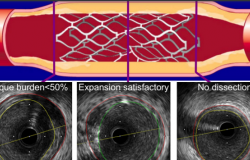 IVUS-Guided PCI Gains Support With Longer-Term ULTIMATE Results