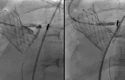 Unplanned PCI Rare After TAVI, but Operators Get Good Results