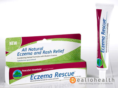 what causes eczema on legs