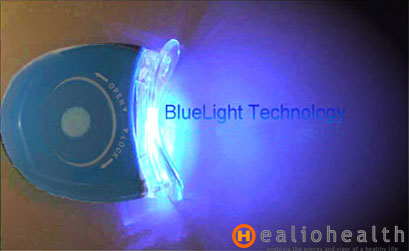 laser teeth whitening blue light treatment whitening teeth. Black Bedroom Furniture Sets. Home Design Ideas