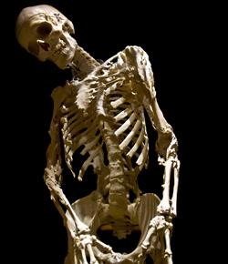 Caption: The skeleton of Harry Eastlack, whose disease-ravaged bones are on display at Philadelphia's Mütter Museum., Credit: Evi Numen, 2011, for the Mütter Museum of The College of Physicians of Philadelphia.
