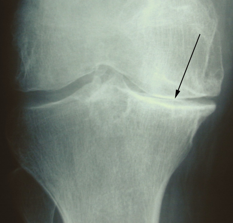 Caption: KNEE, Credit: Dr. Grelsamer