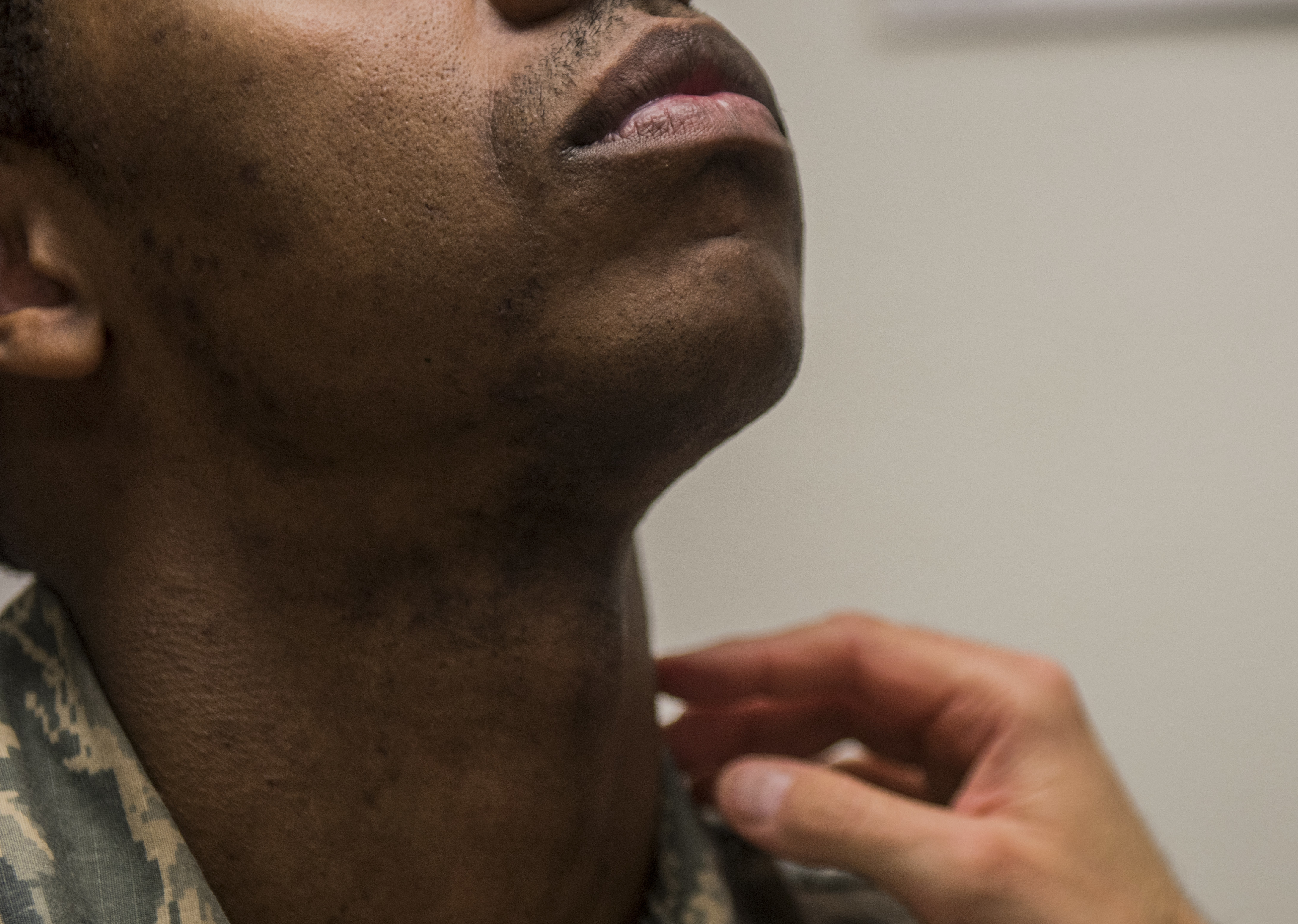 Caption: Staff Sgt. Antoine raises his head as a flight surgeon inspects his neck and face during a 2018 shaving waiver course at Beale Air Force Base in California., Credit: Colville McFee / U.S. Air Force