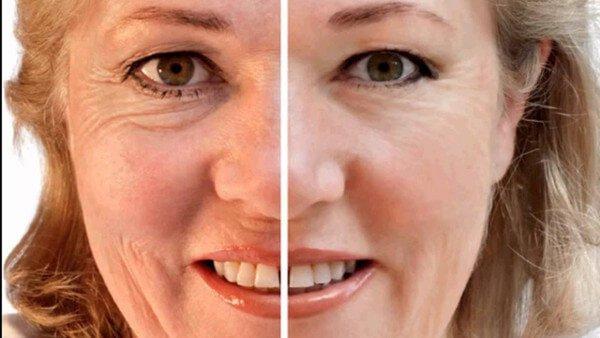 3 mascarillas naturales para atenuar las arrugas profundas