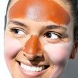 Joven se aplica tratamiento para quitarse la papada y acaba con el rostro deforme